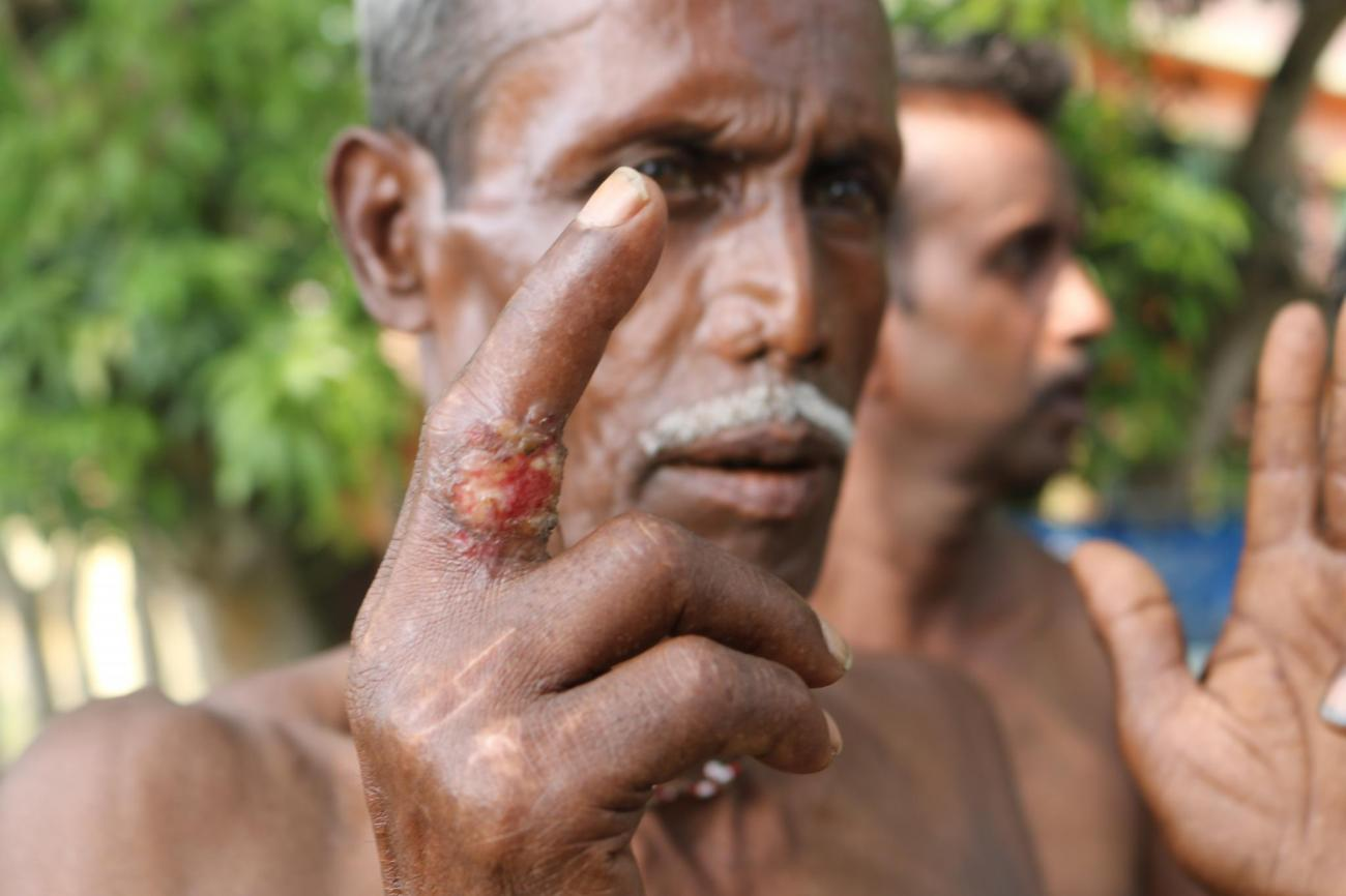 Exposure to arsenic leads - Hundreds of people in India fall victims to chronic skin keratosis or skin cancer