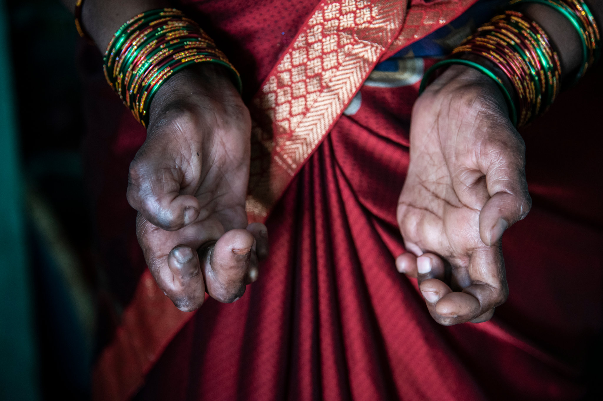 Leprosy & stigma: A tough battle to win in India