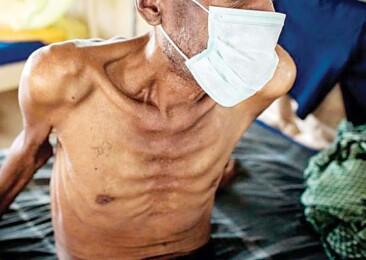 Covid-19 decelerates India's fight against tuberculosis